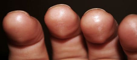 Build calluses for guitar playing